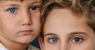 Brothers Are Born With Different-Coloured Eyes And They Look Gorgeous