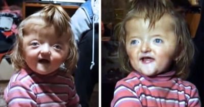 Nursery Banned Girl, 2, Because Her Deformed Skull Might Scare Other Children