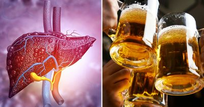 Liver Damage Caused By Drinking Can Soon Be Cured, Says Science