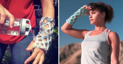 Engineers Make Breathable And Waterproof Cast To Replace Plaster Casts And Stop Itching