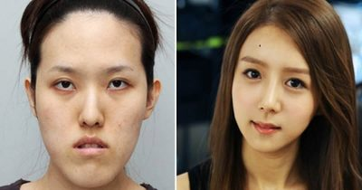 19 Before & After Pics From Korean Plastic Surgery Makeover Show
