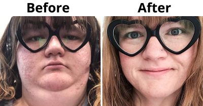 15 Incredible Transformations By People Who Promised Themselves The Change