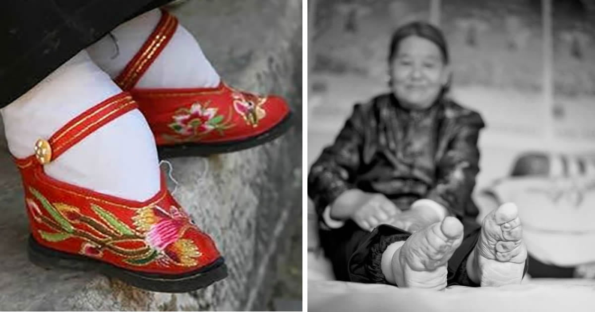 The Last Chinese Woman To Follow Foot-Binding Tradition Reveals Its Damage