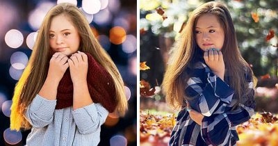 Teen With Down Syndrome Becomes A Successful Model After Doctors Said To Put Her In An Institution