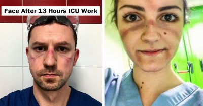 Healthcare Workers Share Pics Of Face Injuries Due To Overtime That Show Their Battle On The Frontlines
