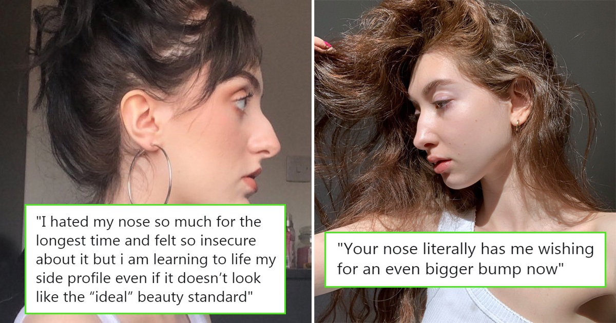 Women Are Sharing Pics Of Their Noses That Look Like 'Before' Photos