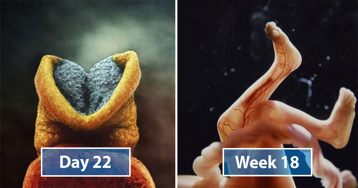 22 Stunning Pics That Show The Stages Of Life Forming Until A Child Is Born