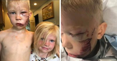 Big Bro Saves His Sister's Life By Diving Between Her And Vicious Dog