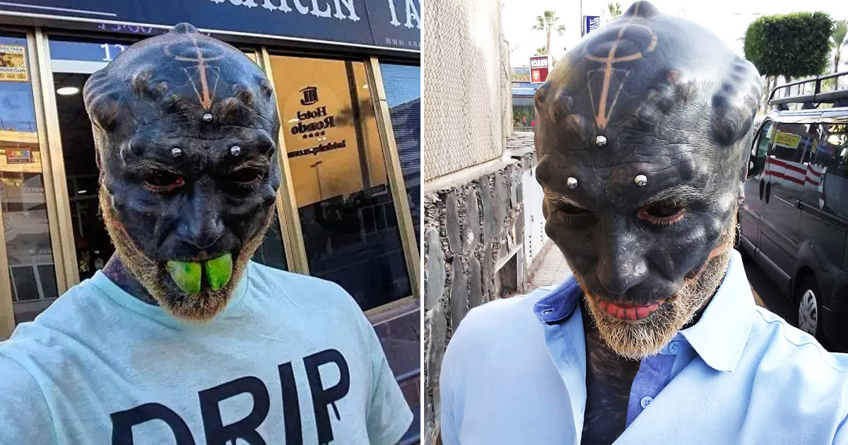 Man Who Turned Himself Into 'Black Alien' Has Nose Removed