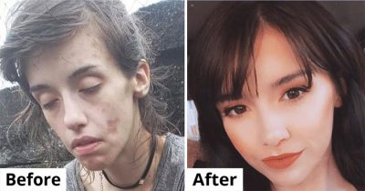 20 Incredible 'Before And After' Transformations Of Addicts Who Are Finally Clean