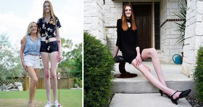Girl, 17, With The World's Longest Legs '4ft 5Inch' Has Aspirations To Become A Model
