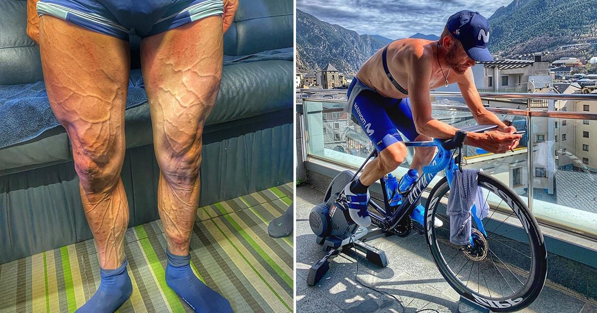 Cyclist Shares Incredible Pics Of His Legs After A Rough Race