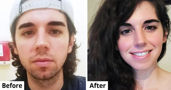 19 People Who Overcome All Obstacles And Finally Transformed Into Their True Selves