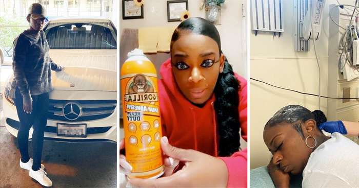 Gorilla Glue Girl: How Viral Hair Misery Changed Her Life