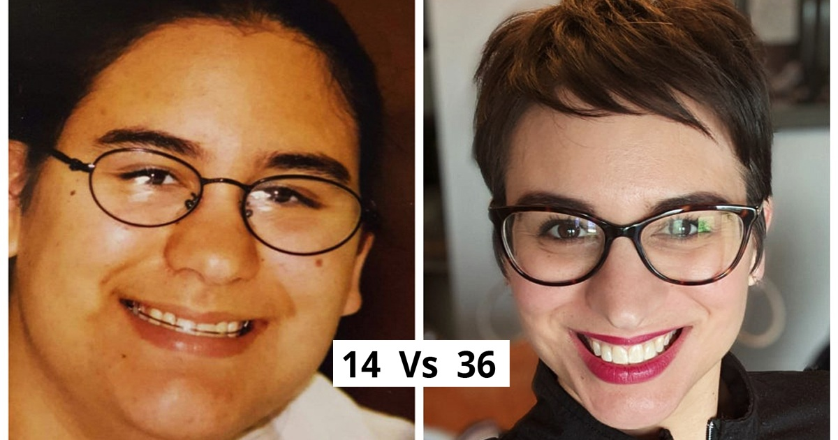 20 People Whose Before & After Pics Are Absolutely Different