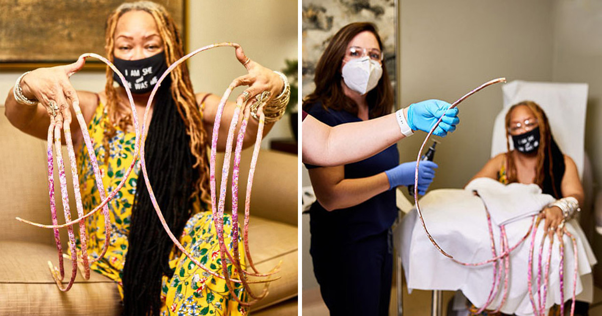 Woman Cuts Off Her 'World's Longest Fingernails' After 30 Years