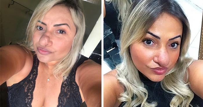 Woman Reveals Her Nose Doubles In Size After Plastic Surgery And Is Taunted By Strangers