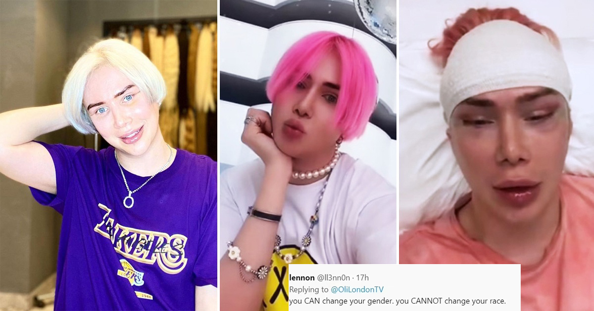 British Influencer Slammed For Revealing They're 'Finally Korean' After Having Eye Surgery
